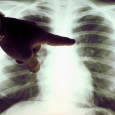 Laktanya utcai Szakrendelő - Tüdőszűrő Állomás